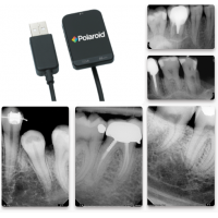 Polaroid Keren HD Intraoral Sensor