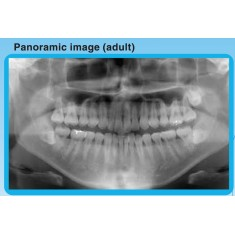 Belmont Cypher Digital Panoramic X-ray